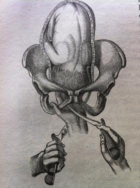 """Förlossning med tång från """"Die Einfuhrung des rechten Loffels. Scanzoni 1855."""