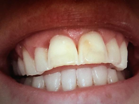 Tänderna innan kronorna gjordes.