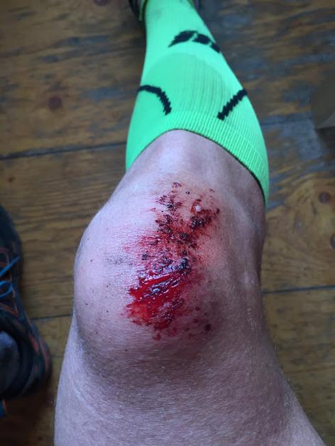 Ett havererat knä... ser värre ut än vad det var.