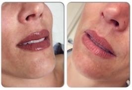 Ifyllda läppar - nygjort samt efter läkning