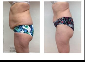 Före & Efter 15 behandlingar