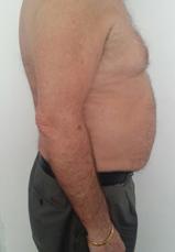 Efter 12 behandlingar på 6 veckor