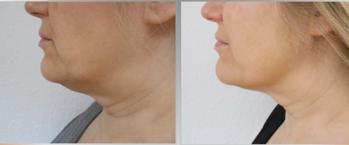 Före & Efter 6 behandlingar