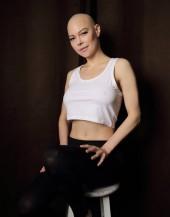 Jenny Hutton bald 2021