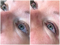 kosmetisk pigmentering umeå