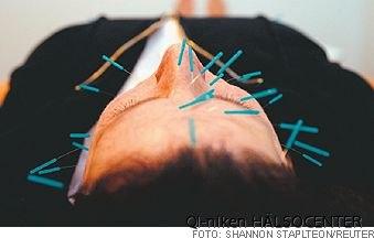 bota allergi med akupunktur