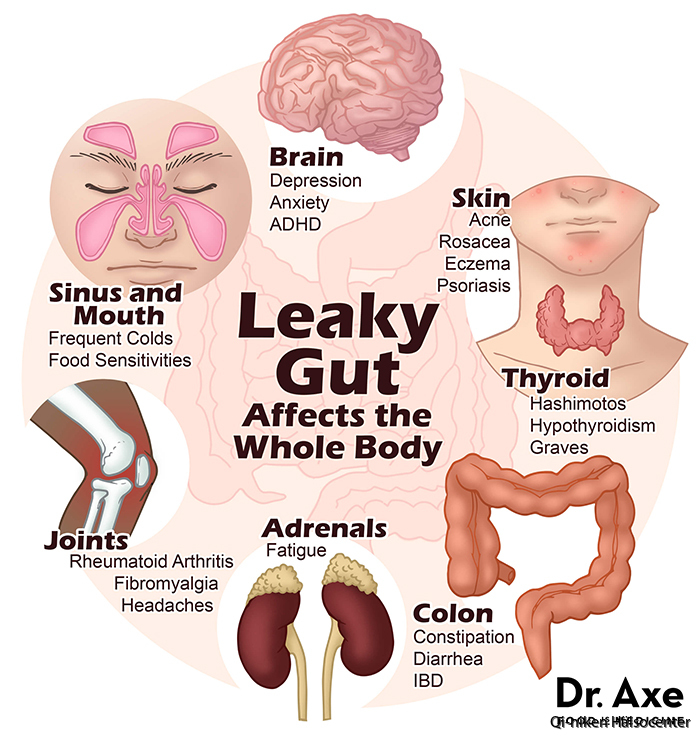 Leaky-Gut-Syndrome-Image-Draxe.com_
