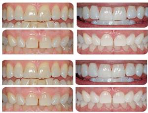 Tandblekning. Väteperoxid