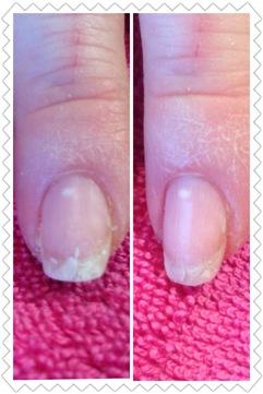 Före och efter en behandling