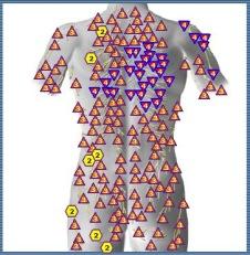 Exempel: ryggen skannad och markörer visar belastning vid skulderblad