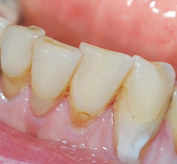 Innan skalfasader gjordes på fyra tänder i underkäken.