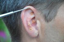 Min hälsporre försvann med öronakupunktur.