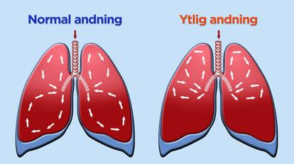 Bilden har jag lånat från medvetenandning.se där du kan läsa mer om hur andningen påverkar vår hälsa.