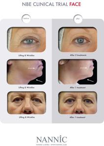 Resultatbilder efter NBE behandling i ansiktet.