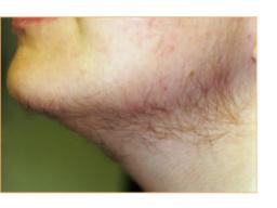 Permanent hårborttagning