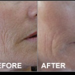 ULTRASOUND IONTOFORES BEFORE- AFTER