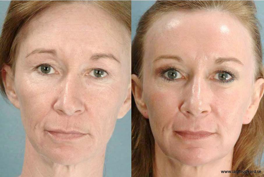 rf behandling ansikte