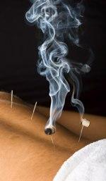 moxaakupunktur