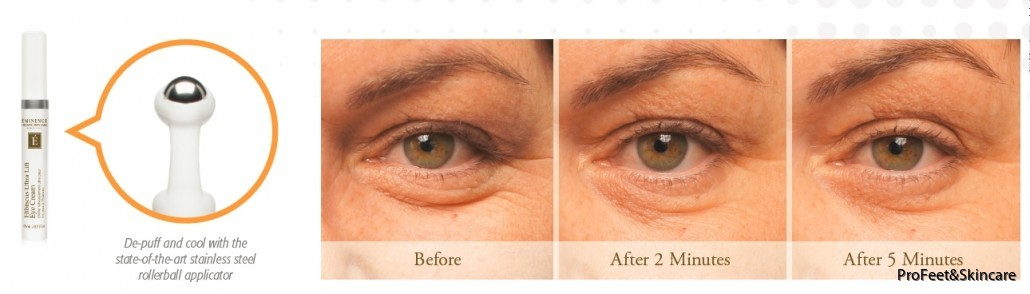 Before-After-Hibiscus-Eye-Cream-11-1030x294
