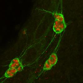 lymphatic progenitors
