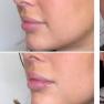 Vackra läppar och vackra resultat!