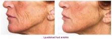 Ljusåldrad hud ansikte - före och efter