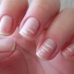 Fingernaglar2
