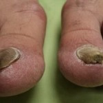 laser-treatment-2for-toenail-fungus-detailed-information-300x225