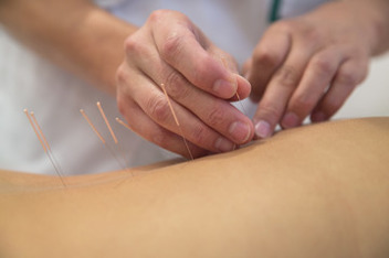 Akupunktur hos ERC