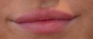 Efter beh med 1,0 ml Lip Volume / Behandlare Eva-Marie Stridsberg