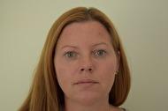 """Efter behandling med Azzalure """"Botox"""" i glabella, pannan och sura mungipor, samt behandling med Restylane """"trötta ögon"""", kinder samt minimal mängd i överläppen. / Behandlare Eva-Marie Stridsberg"""