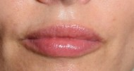 Efter Touch up med 0,4 ml, bilden tagen direkt efter behandlingen. / Behandlare Eva-Marie Stridsberg