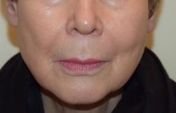 Kvinna 76 år / Bild tagen efter användning av Advanced Radical Night Repair under 4 månader, samt GSR, Daily Power Defense. Ingen kosmetika är använd!