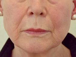 Kvinna 76 år / Bild före användning av Advanced Radical Night Repair