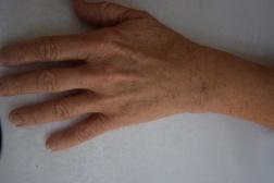 Efter två behandlingar med 1,0 ml Restylane Vital / Behandlare Eva-Marie Stridsberg