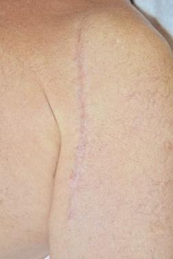 Bild efter 6 behandlingar med Fraxium 1550