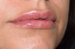 Bild tagen direkt efter behandling med Restylane Lyps 1,0 ml