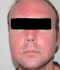 6:e september. Inleder med ZO Skin Health-protokoll för rosacea