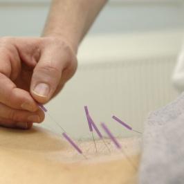 Akupunktur behandling med AcuNova Akupunktur hos HälsoPerlan i Åhus, Blekinge