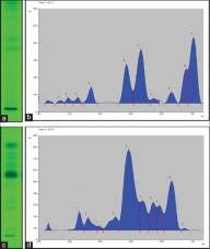 Pharmacognostic Screening of Piper trichostachyon Fruits and its Comparative Analysis with Piper nigrum Using Chromatographic Techniques.  (a) Piper trichostachyon high performance thin layer chromatography profile; (b) Piper trichostachyon high performance thin layer chromatography densitogram; (c) Piper nigrum high performance thin layer chromatography profile; (d) Piper nigrum high performance thin layer chromatography densitogram Vinayak Upadhya, et al. Pharmacogn Mag. 2016 May;12(Suppl 2):S152-S158.