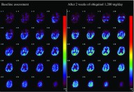 Three-Year Follow-Up of High-Dose Ubiquinol Supplementation in a Case of Familial Multiple System Atrophy with Compound Heterozygous COQ2 Mutations.  CMRO2 images before and after ubiquinol supplementation at 1200 mg/day Jun Mitsui, et al. Cerebellum. 2017;16(3):664-672.