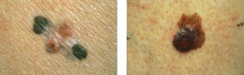 Bildexempel på Malignt melanom. Foto: Cancerfonden och Jan Lapins, Karolinska Universitetssjukhuset
