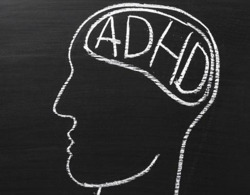 Medicinering med metylfenidat vid adhd tycks påverka hjärnans vita substans.