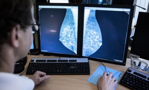 Christine Olsson/TT Meningarna går isär om riskerna med hormonbehandling av klimakteriebesvär. Arkivbild.