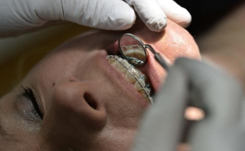 ANDERS WIKLUND / TT Tanken med det statliga tandvårdsstödet är att en patient inte ska behöva stå för hela kostnaden vid dyra ingrepp. Arkivbild.