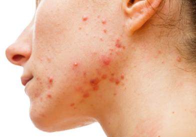 Vid acne, rosacea & ökad pigmentering