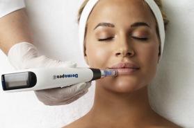Microneedling DermaPen hos ClearSkin Clinic i Halmstad