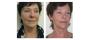 NBE 500 - Ansikte, resultat före och efter 10 behandlingar