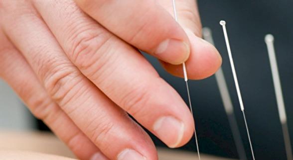 AKUPUNKTUR nålar sätts på utvalda punkter och områden beroende av besvär