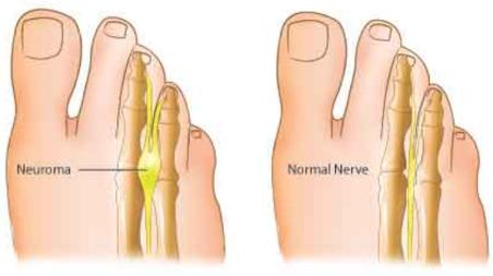Mortons neurom sjukdom. Ont i framfoten
